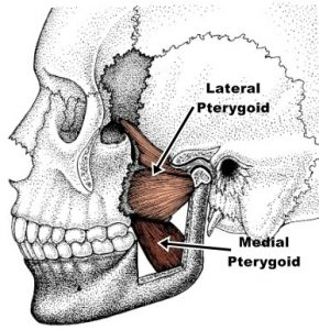 Pterygoid Triggers