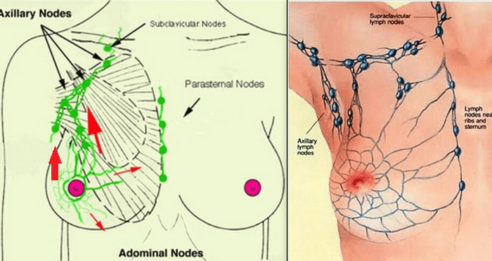 Mastitis   Massage   Ultrasound   Balwyn North