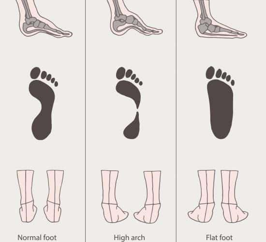 Flat Feet | High Arches | Osteopathy Kew