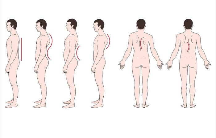 Spinal Postures Image