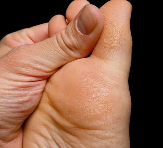 Foot Pain | Anantomy in Motion | Bunion | Canterbury