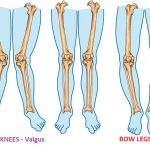 Knock Knees   Valgus Knee   Bow Legs   Varus Knees