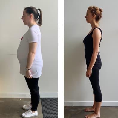 Pregnancy Osteopathy | Pregnant | Balwyn | Kew