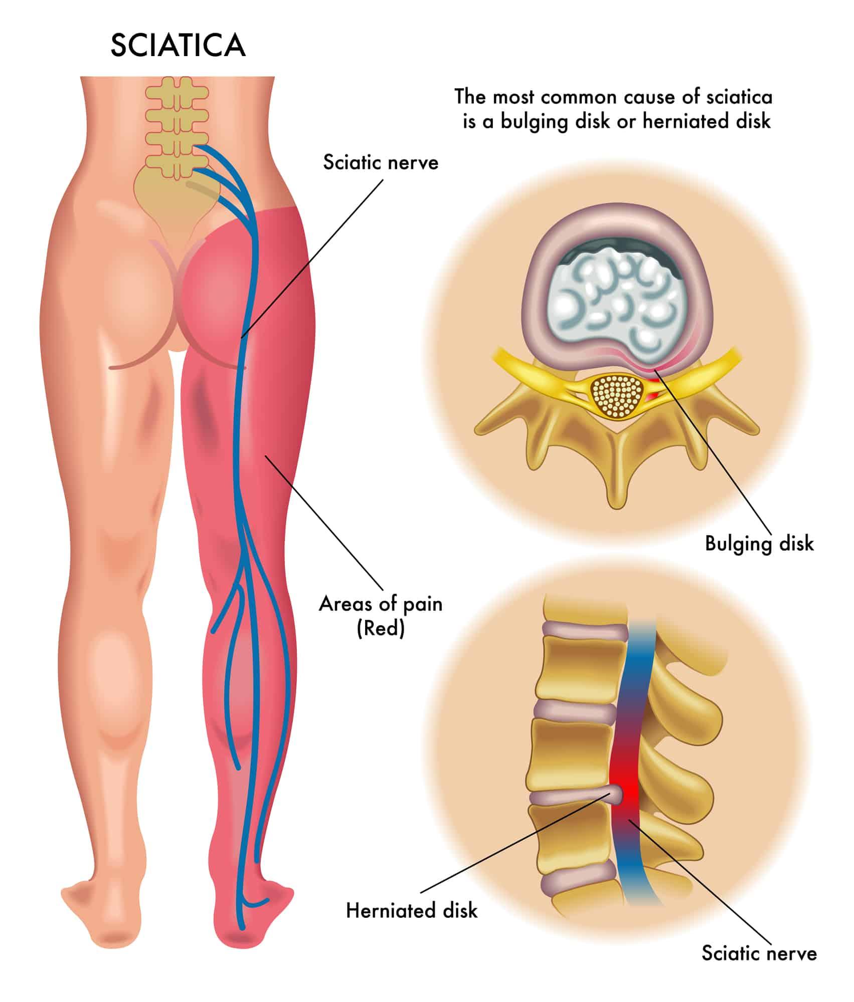 Sciatica | disc injury | disc and MRI |disc bulge
