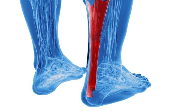Achilled Tendonitits | Achilles Pain | Osteopathy Kew