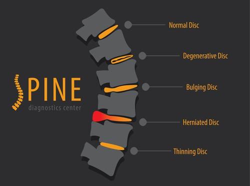 disc | disc prolapse | disc bulge | osteopath disc
