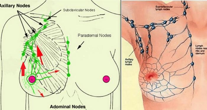 Mastitis | Massage | Ultrasound | Balwyn North