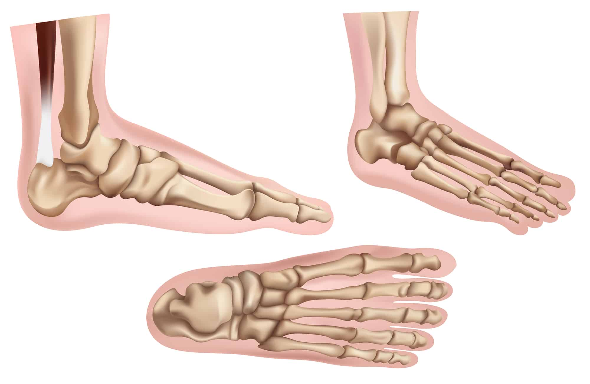 Foot Pain | Anatomy in Motion | Balwyn North