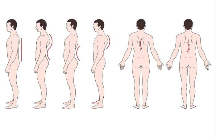 Posture | Scoliosis | Balwyn North Osteopath