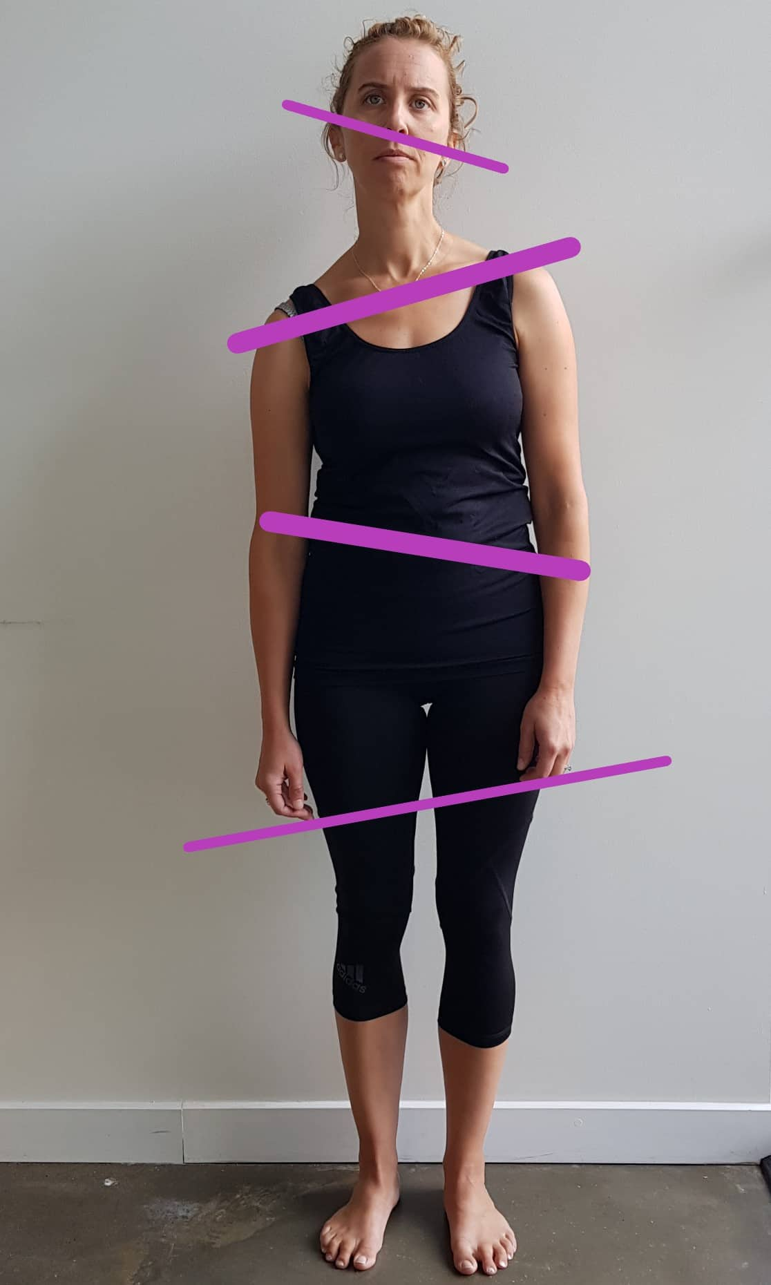 Poor Posture | Anatomy in Motion | Surrey Hills