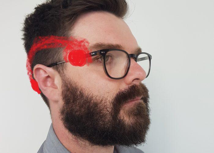 Eye Headache | Headache | Osteopathy | Bulleen