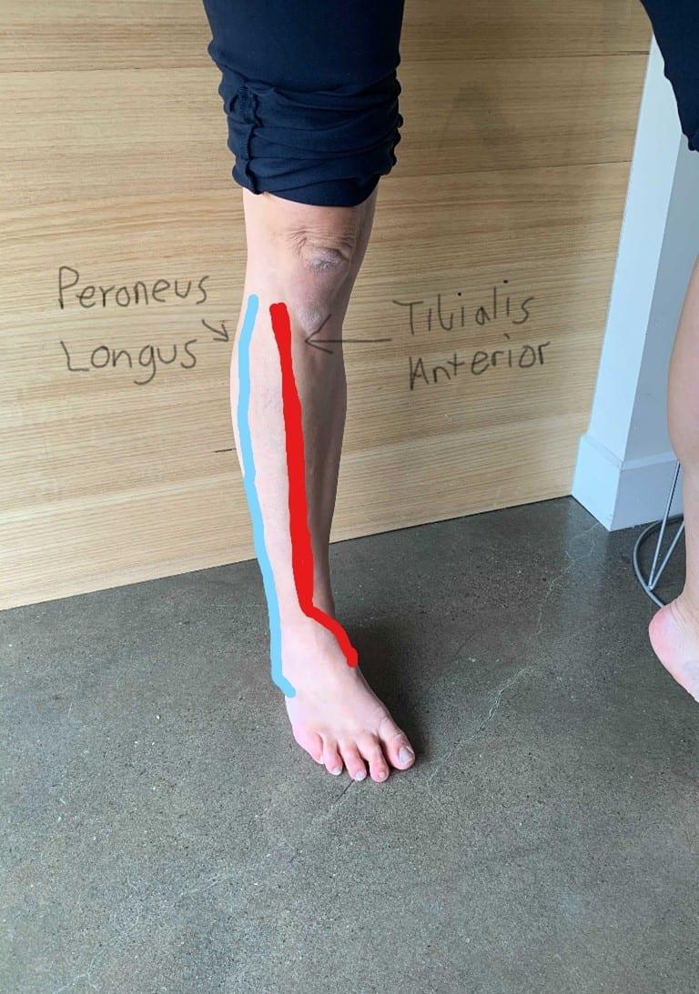 Shin Splints   Plantar Fasciitis   Thongs   flip-flops