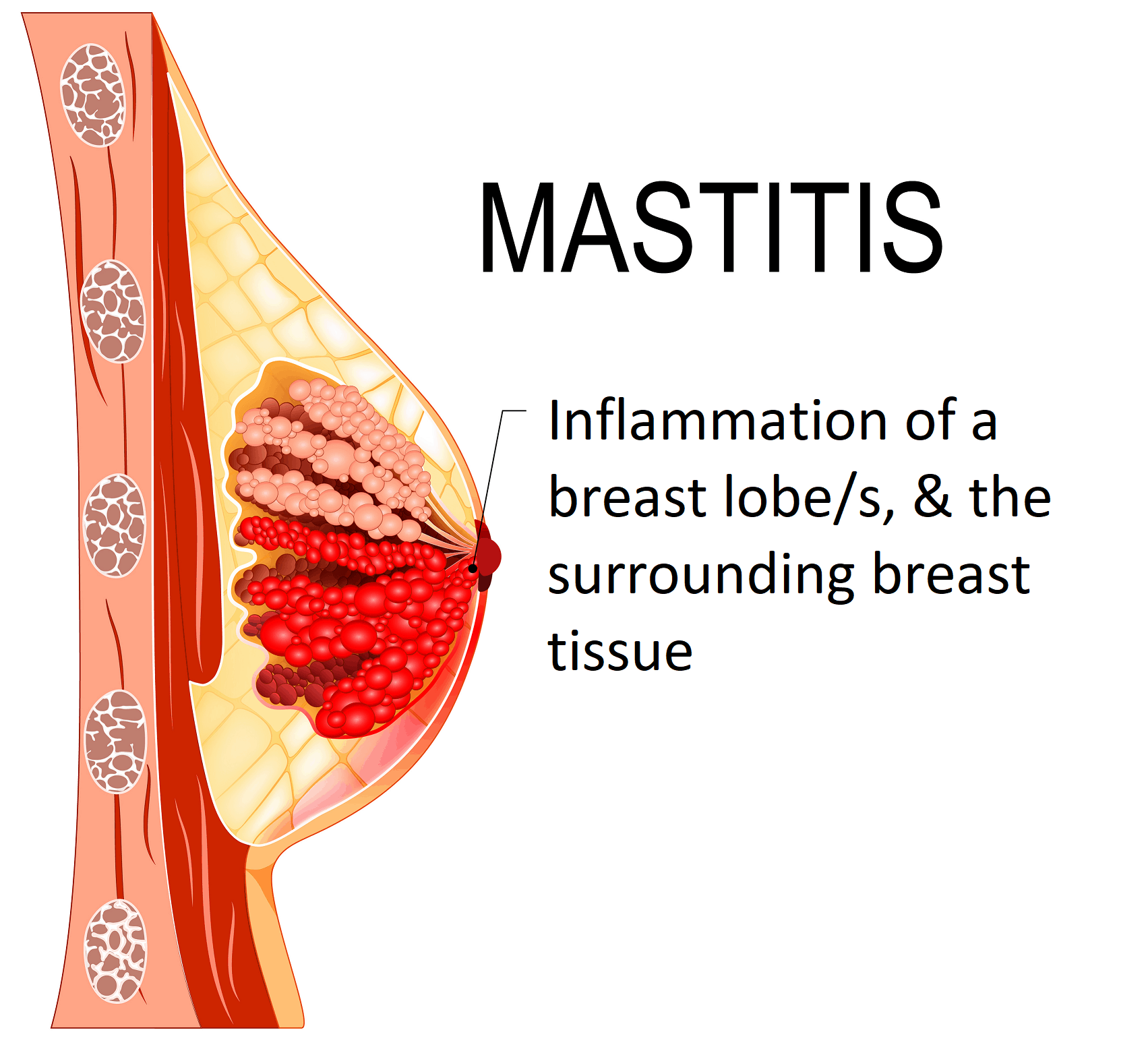 mastitis inflammation | mastitis infection | what is mastitis