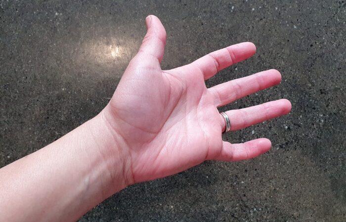carpal tunnel | wrist pain | tingling hand