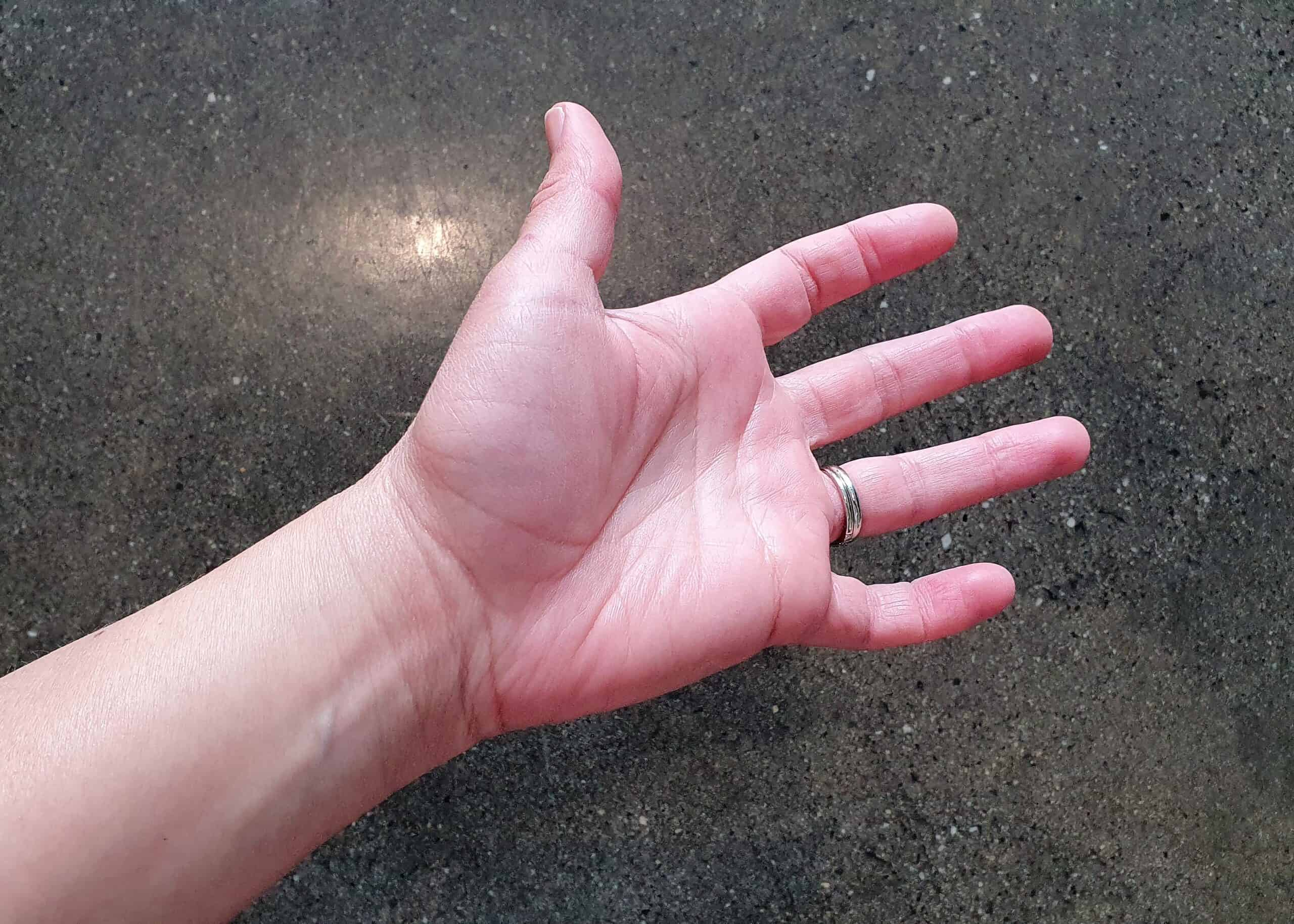 carpal tunnel   wrist pain   tingling hand