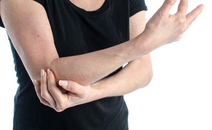 lateral epicondilitis | tennis elbow | elbow pain